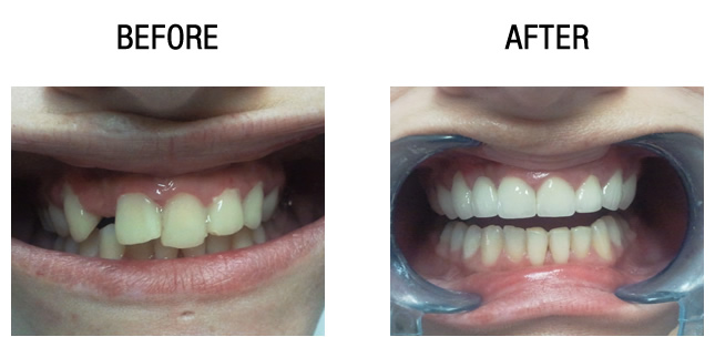 dental-surgery-before-after5